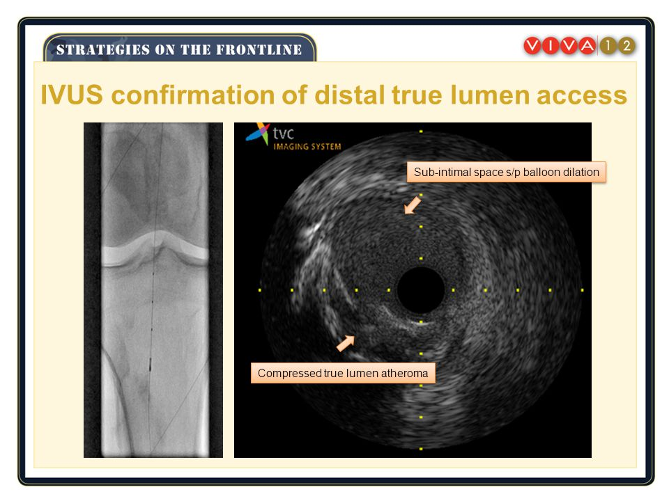 IVUS confirmation of distal true lumen access