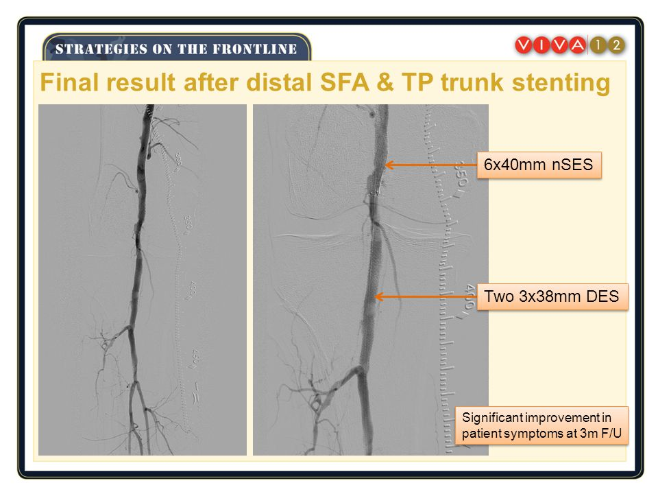 Final result after distal SFA & TP trunk stenting