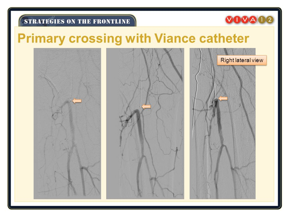 Primary crossing with Viance catheter