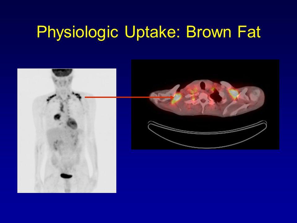 Physiologic Uptake: Brown Fat