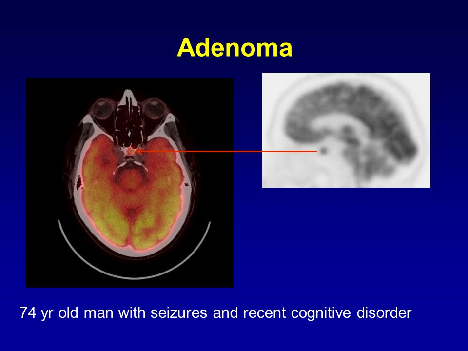 Adenoma 74 yr old man with seizures and recent cognitive disorder