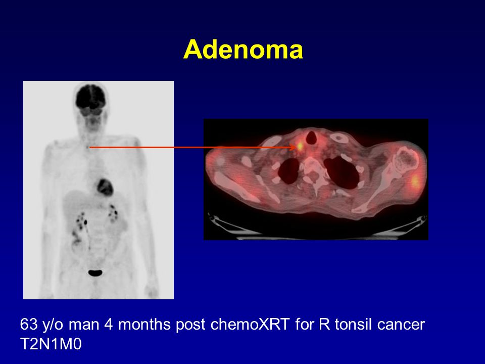 Adenoma 63 y/o man 4 months post chemoXRT for R tonsil cancer T2N1M0