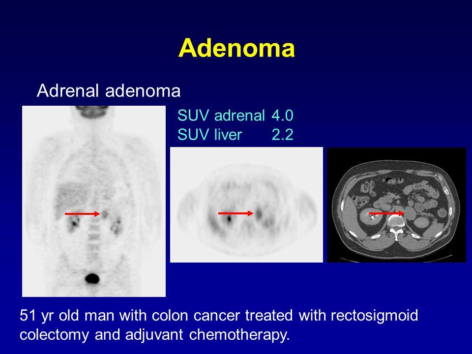 Adenoma Adrenal adenoma SUV adrenal 4.0 SUV liver 2.2