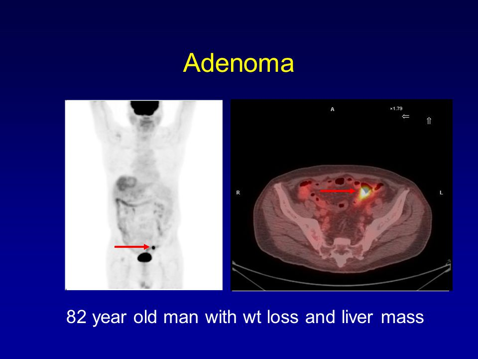 Adenoma 82 year old man with wt loss and liver mass