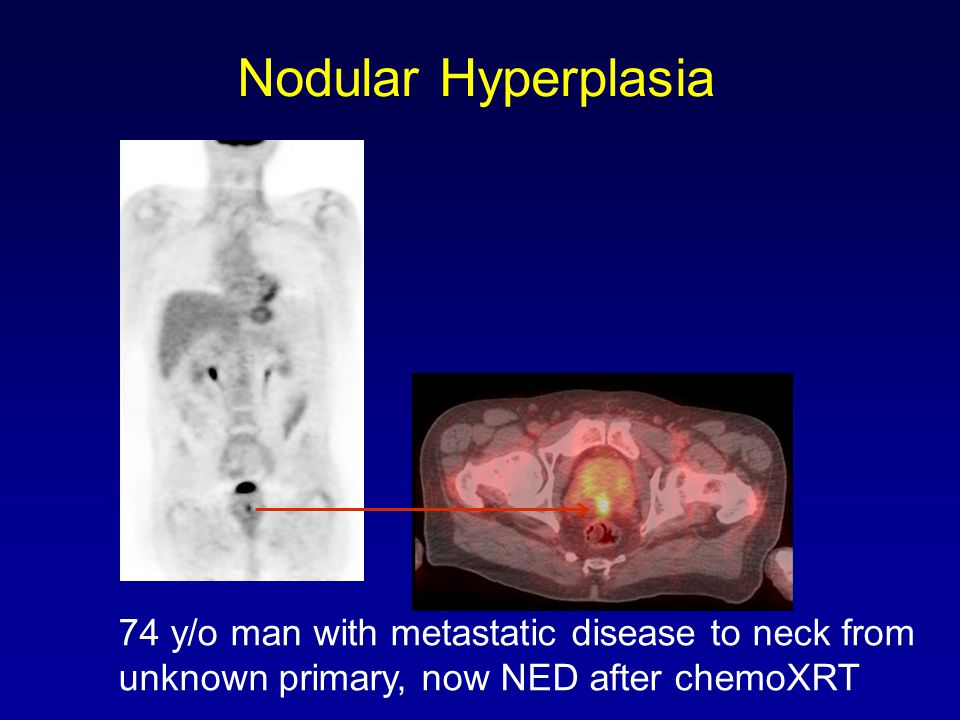 Nodular Hyperplasia 74 y/o man with metastatic disease to neck from unknown primary, now NED after chemoXRT.