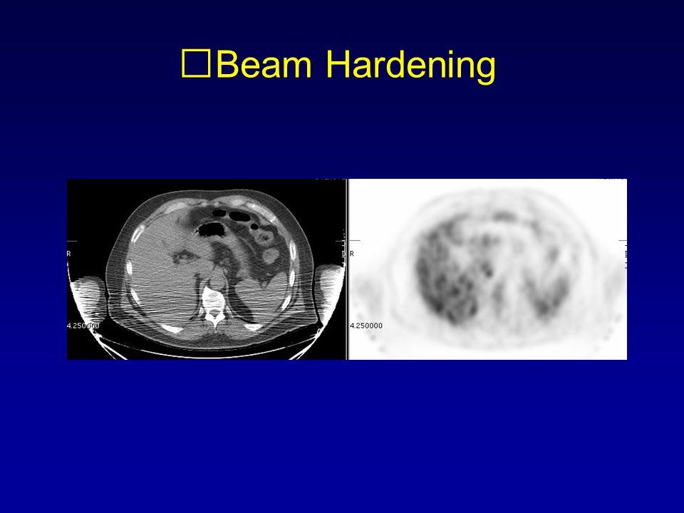 Beam Hardening