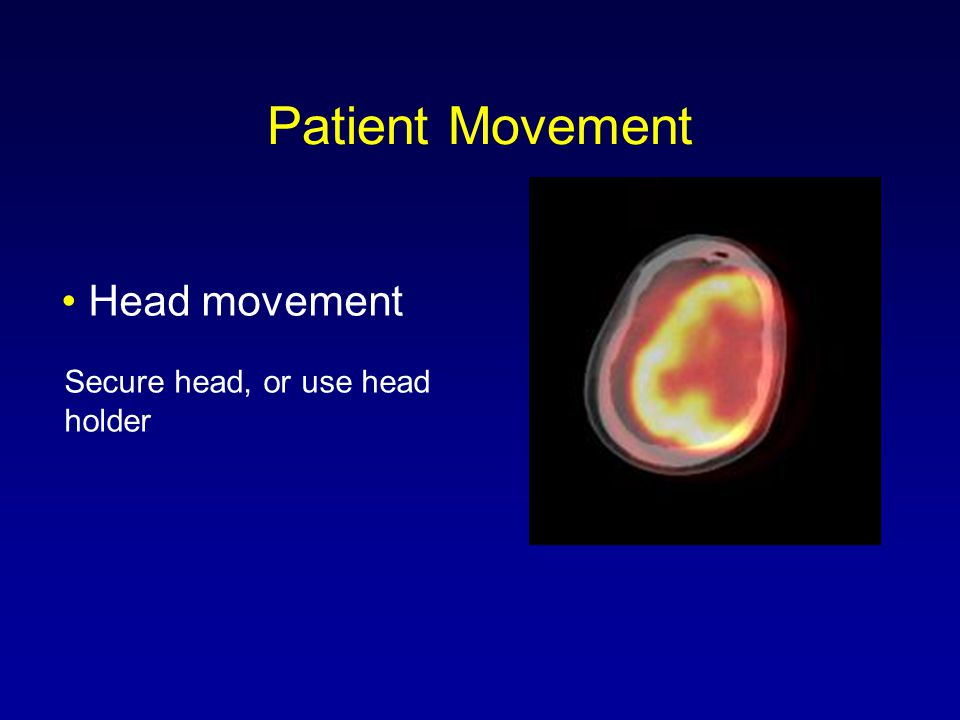 Patient Movement • Head movement Secure head, or use head holder