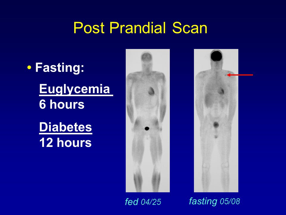 Post Prandial Scan • Fasting: Euglycemia 6 hours Diabetes 12 hours
