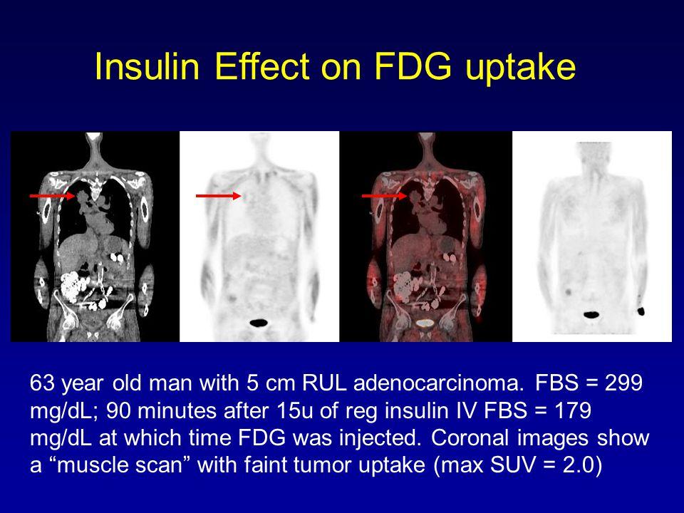 Insulin Effect on FDG uptake