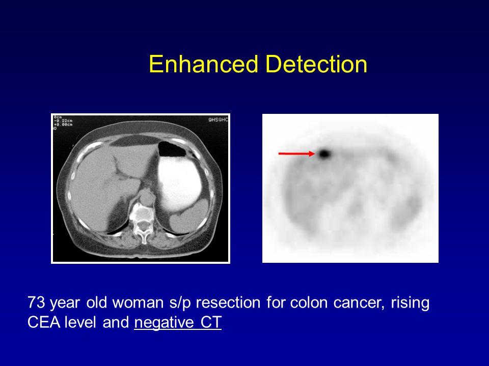 Enhanced Detection