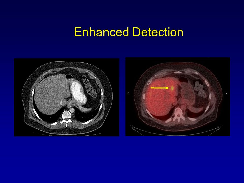 Enhanced Detection H6636. CT (VA Fresno 5/2008) PET/CT 6/20/2008