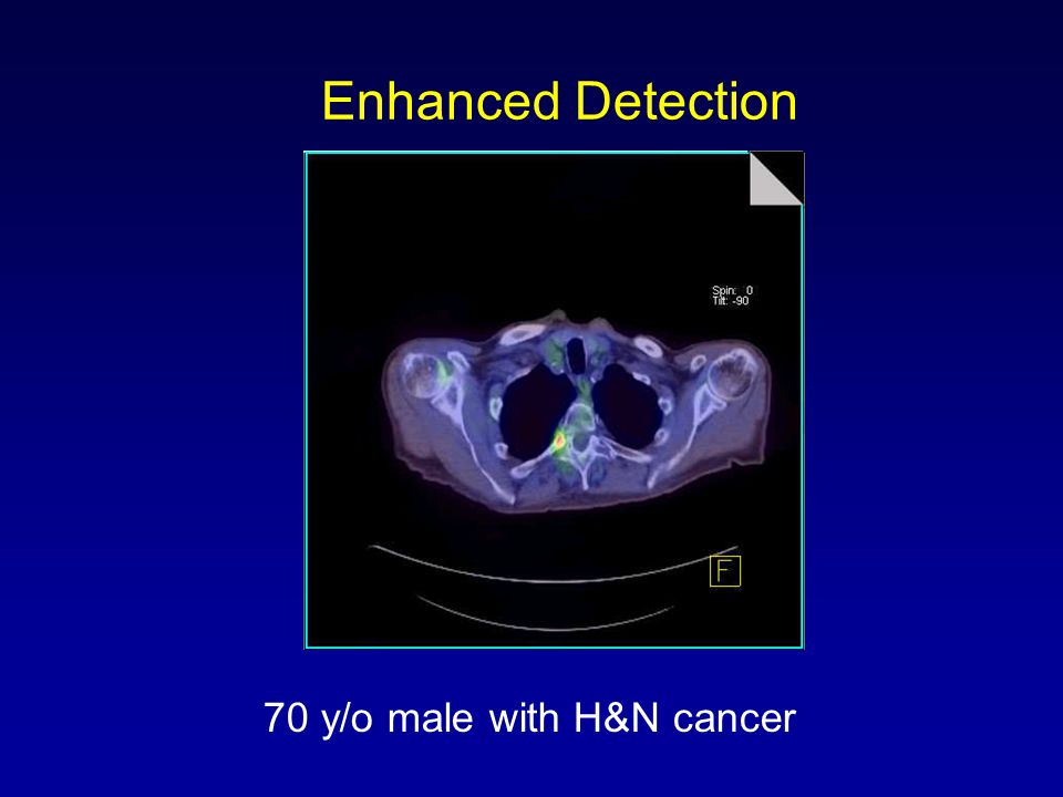 Enhanced Detection 70 y/o male with H&N cancer