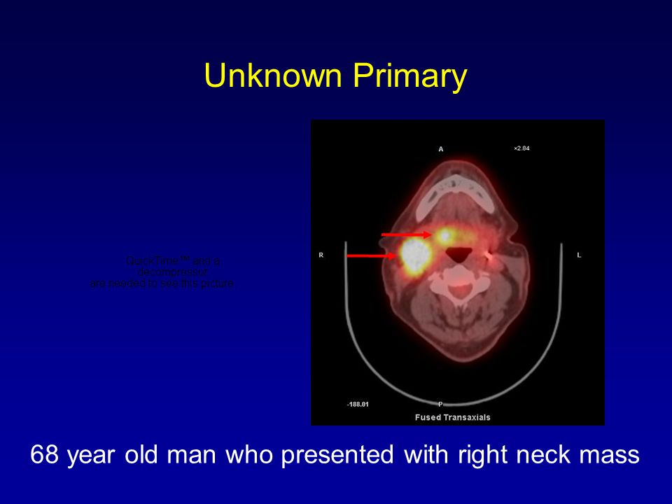 Unknown Primary 68 year old man who presented with right neck mass