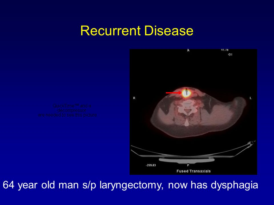 Recurrent Disease 64 year old man s/p laryngectomy, now has dysphagia