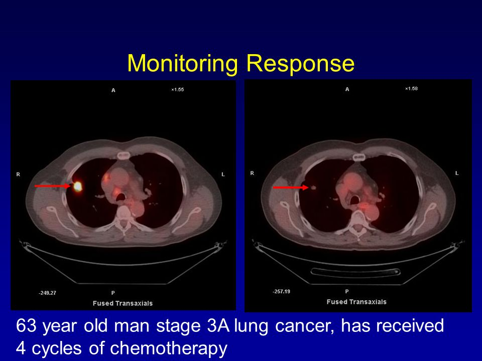 Monitoring Response H5493. PET/CT before chemotherapy 7/24/07; after chemotherapy 11/1/07.