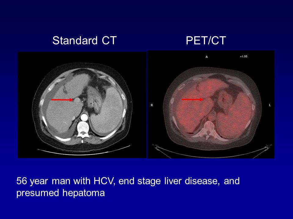 Standard CT PET/CT. D1693. PET/CT 5/24/07.