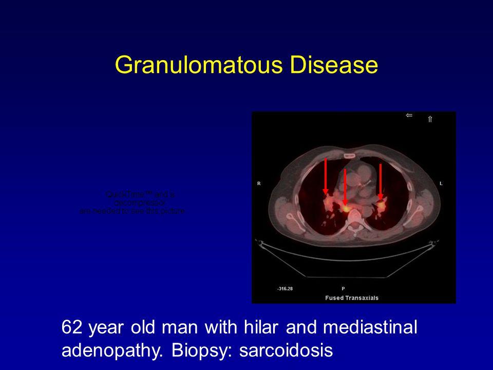 Granulomatous Disease