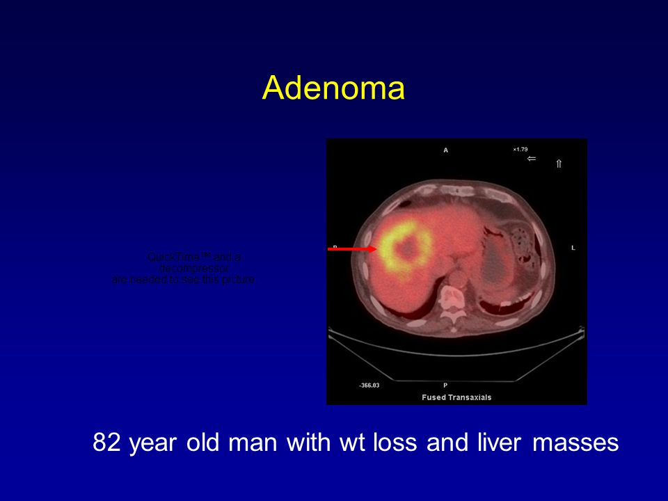 Adenoma 82 year old man with wt loss and liver masses