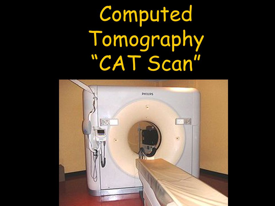 Computed Tomography CAT Scan
