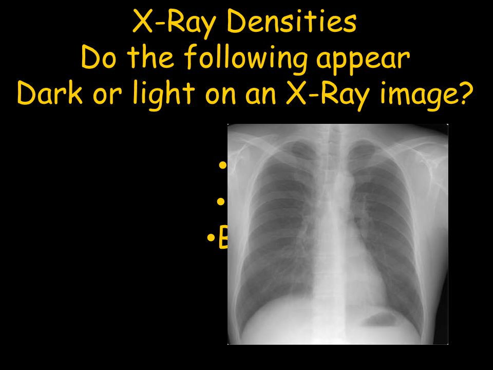 Do the following appear Dark or light on an X-Ray image Air Fat Bone