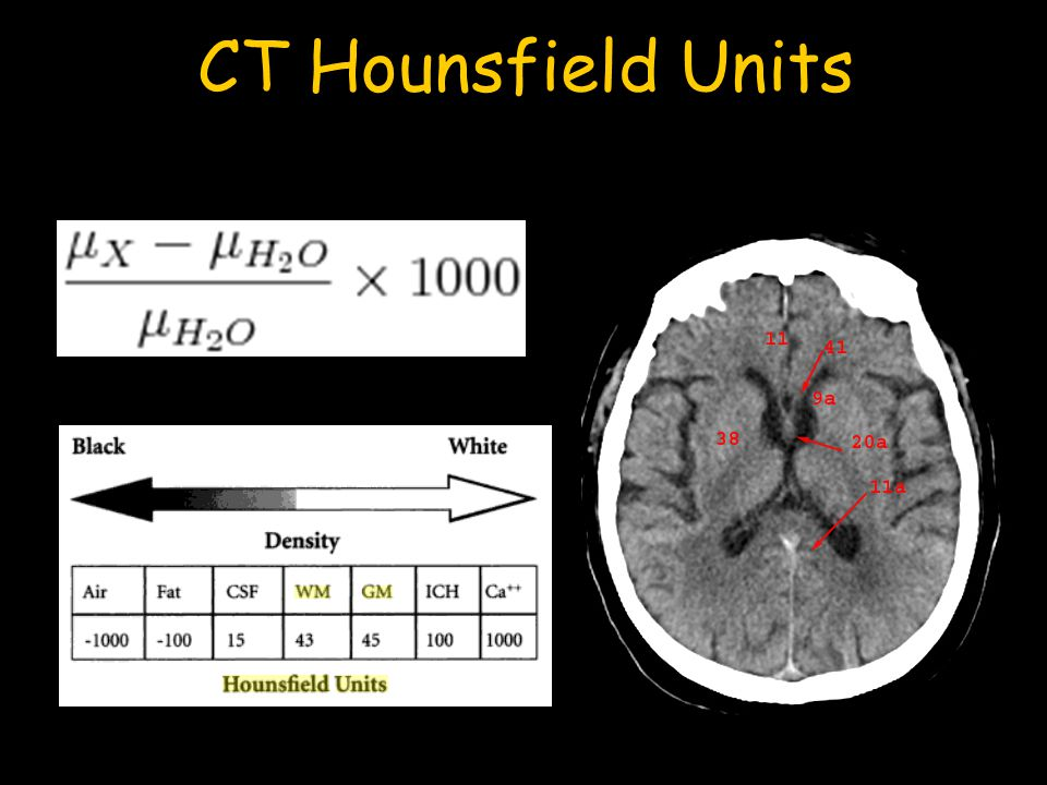 CT Hounsfield Units