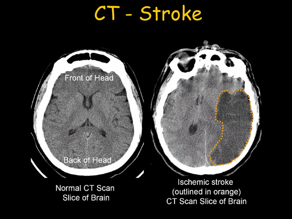 CT - Stroke CT assessment of stroke is very rapid which allows intervention and salvage of tissue at risk in the ischemic penumbra.