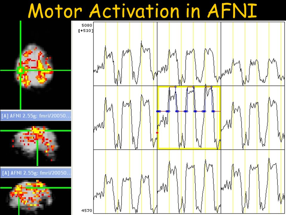 Motor Activation in AFNI