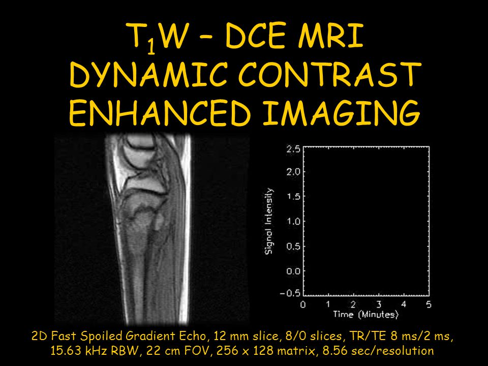 DYNAMIC CONTRAST ENHANCED IMAGING