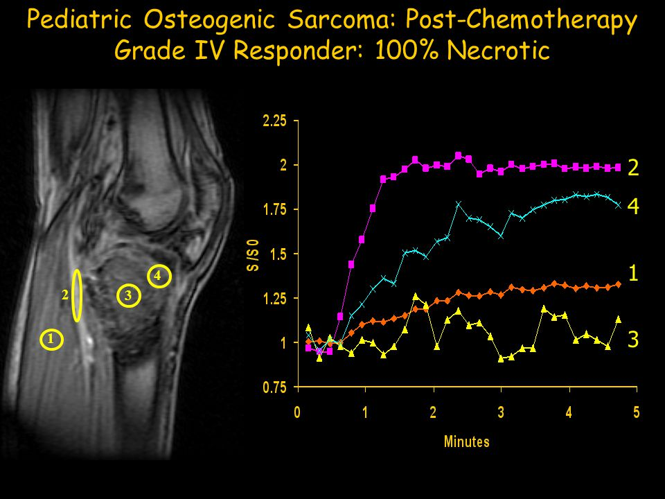 Pediatric Osteogenic Sarcoma: Post-Chemotherapy