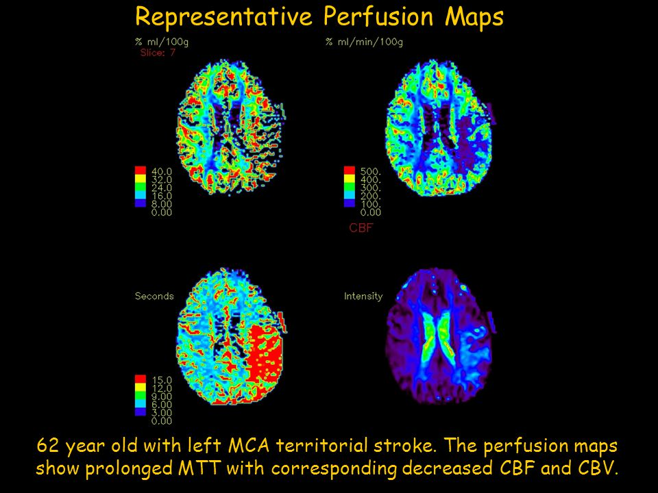 Representative Perfusion Maps