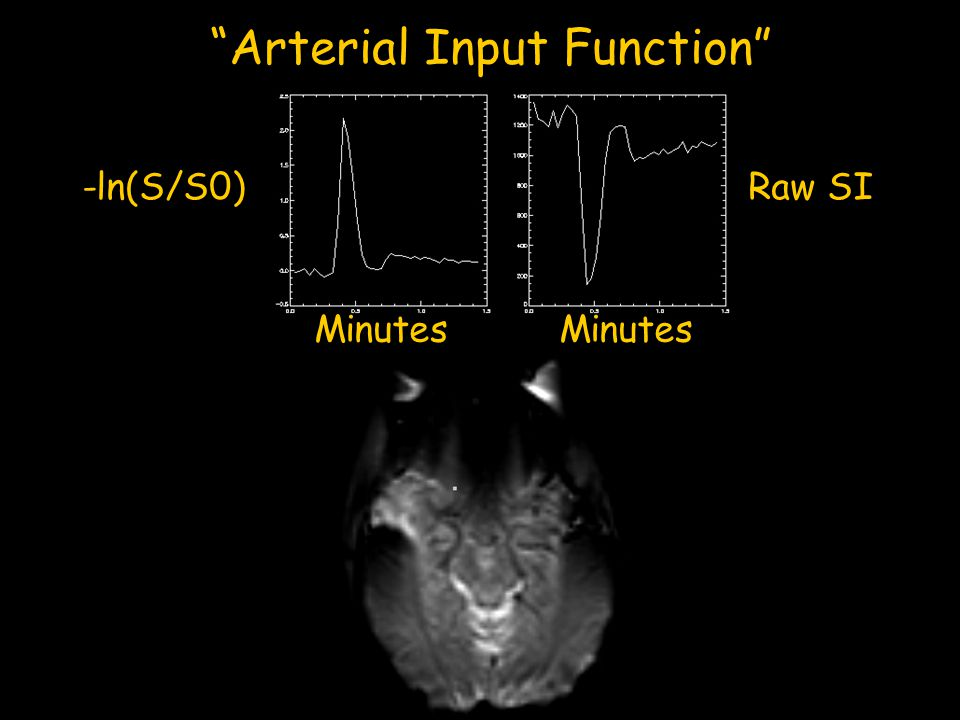 Arterial Input Function