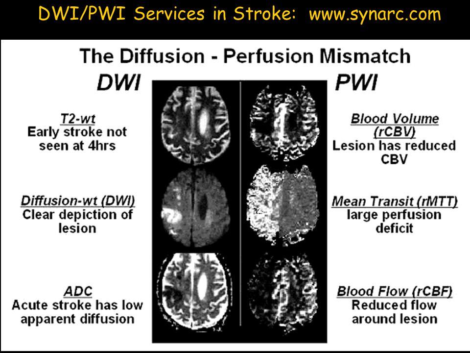 DWI/PWI Services in Stroke: www.synarc.com