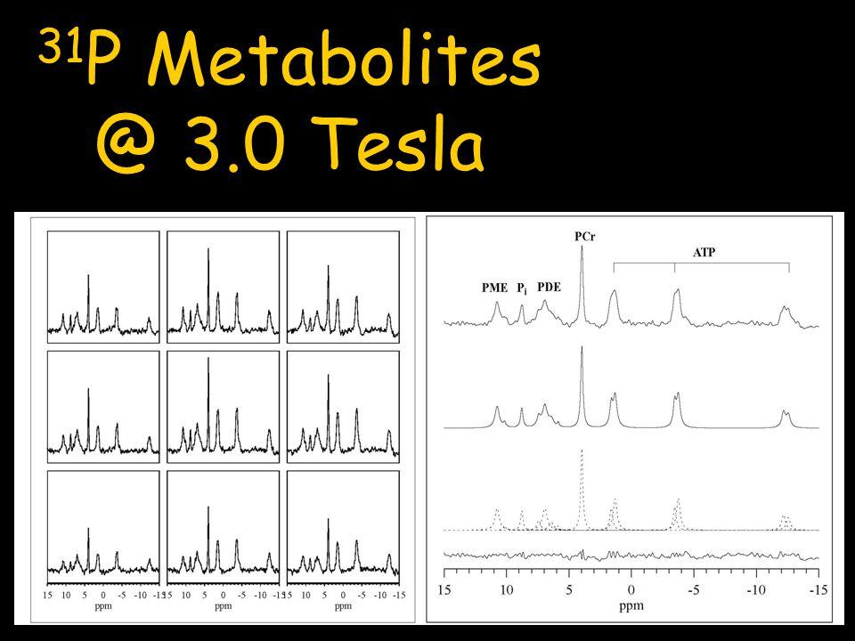 31P Metabolites @ 3.0 Tesla.