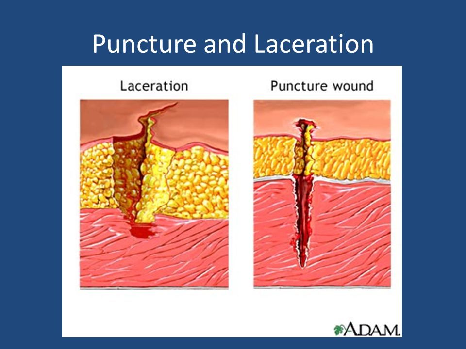 Puncture and Laceration