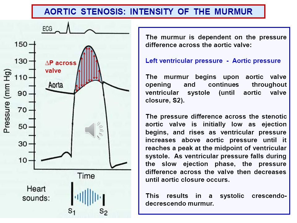 AORTIC STENOSIS: INTENSITY OF THE MURMUR