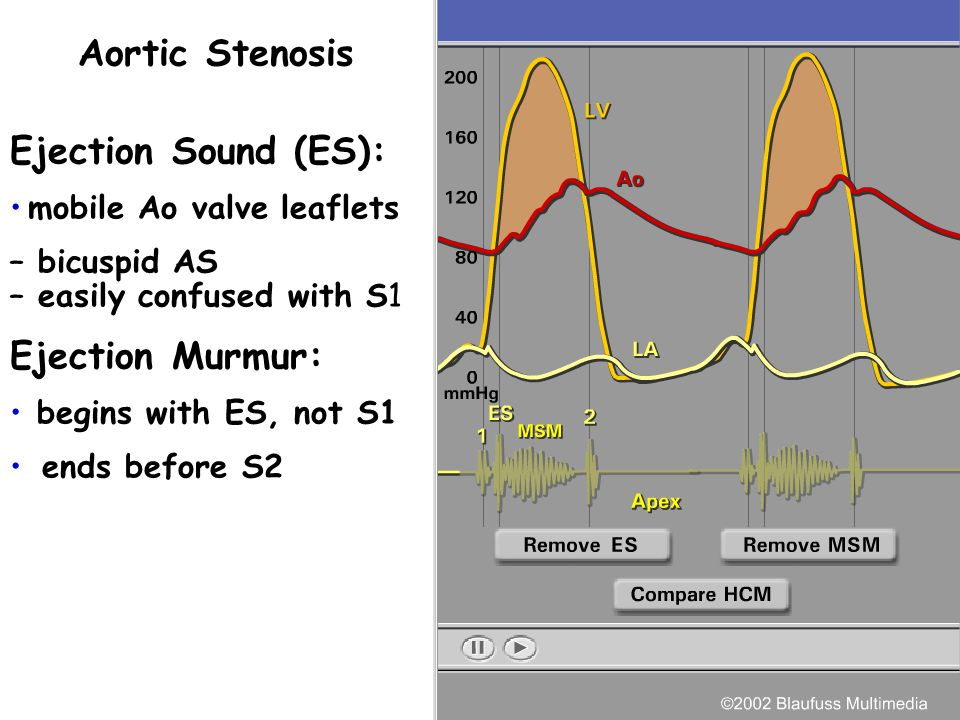 Aortic Stenosis Ejection Sound (ES): Ejection Murmur: