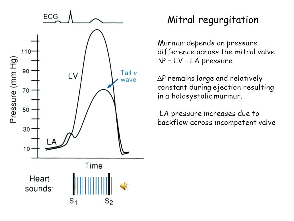 Mitral regurgitation Murmur depends on pressure difference across the mitral valve. P = LV – LA pressure.