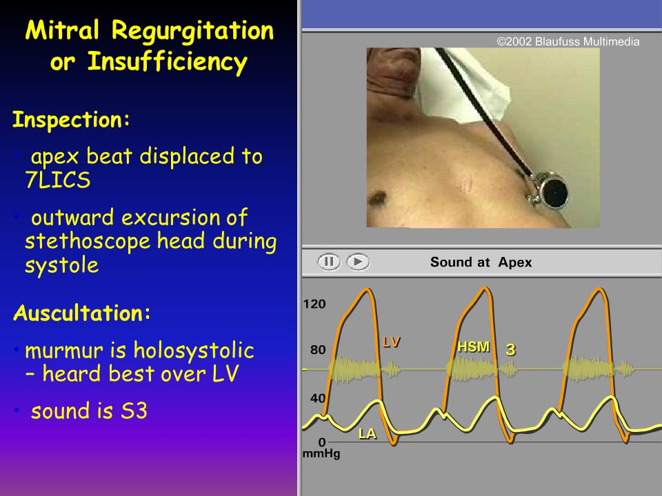 Mitral Regurgitation or Insufficiency