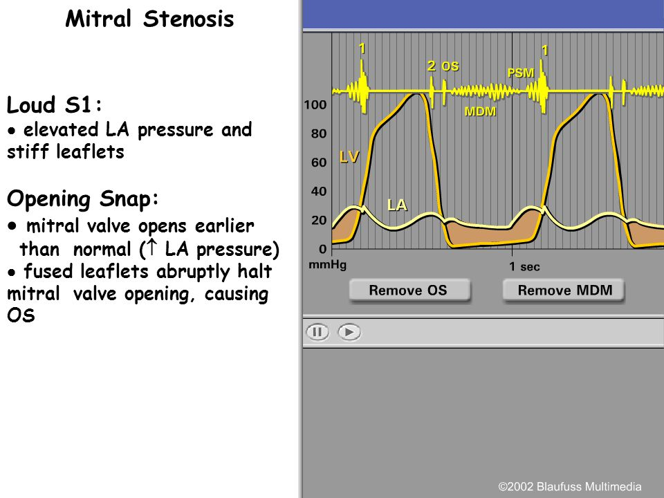 Mitral Stenosis Loud S1: Opening Snap: