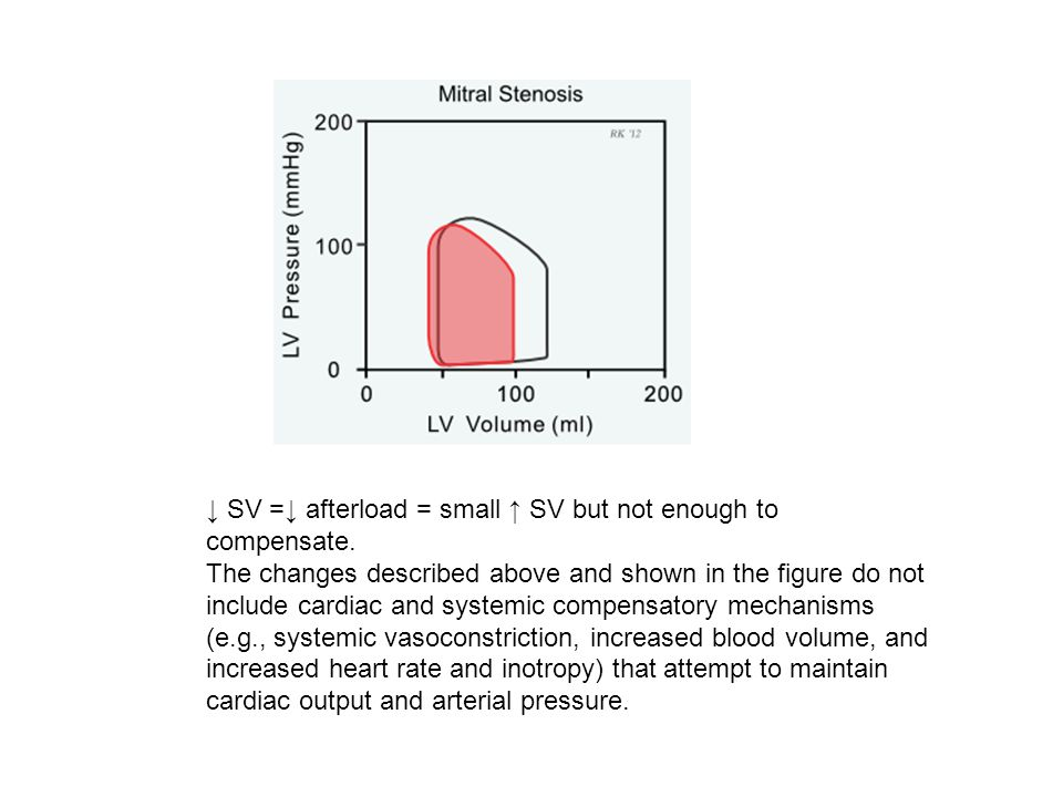 ↓ SV =↓ afterload = small ↑ SV but not enough to compensate.