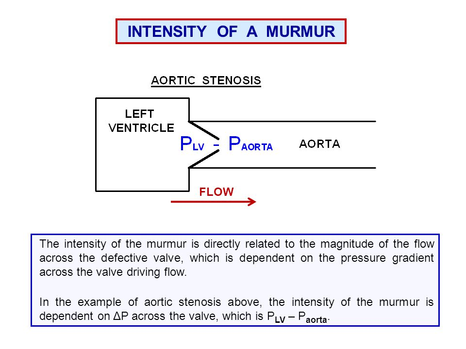 INTENSITY OF A MURMUR FLOW
