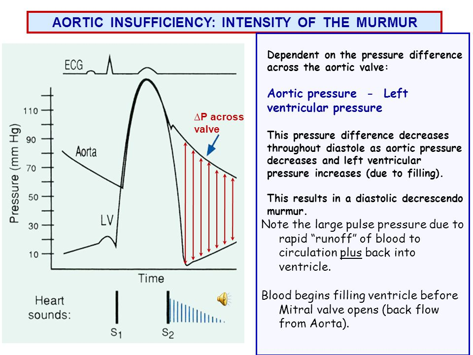AORTIC INSUFFICIENCY: INTENSITY OF THE MURMUR