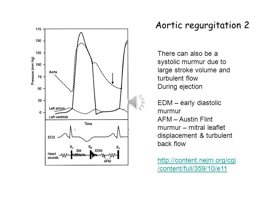 Aortic regurgitation 2 There can also be a systolic murmur due to large stroke volume and turbulent flow.