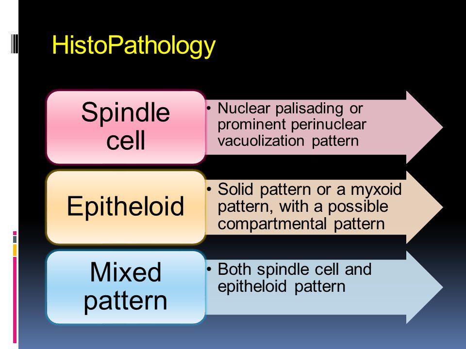 Spindle cell Epitheloid Mixed pattern HistoPathology