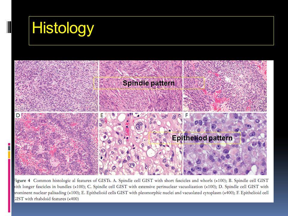 Histology Spindle pattern Epitheliod pattern