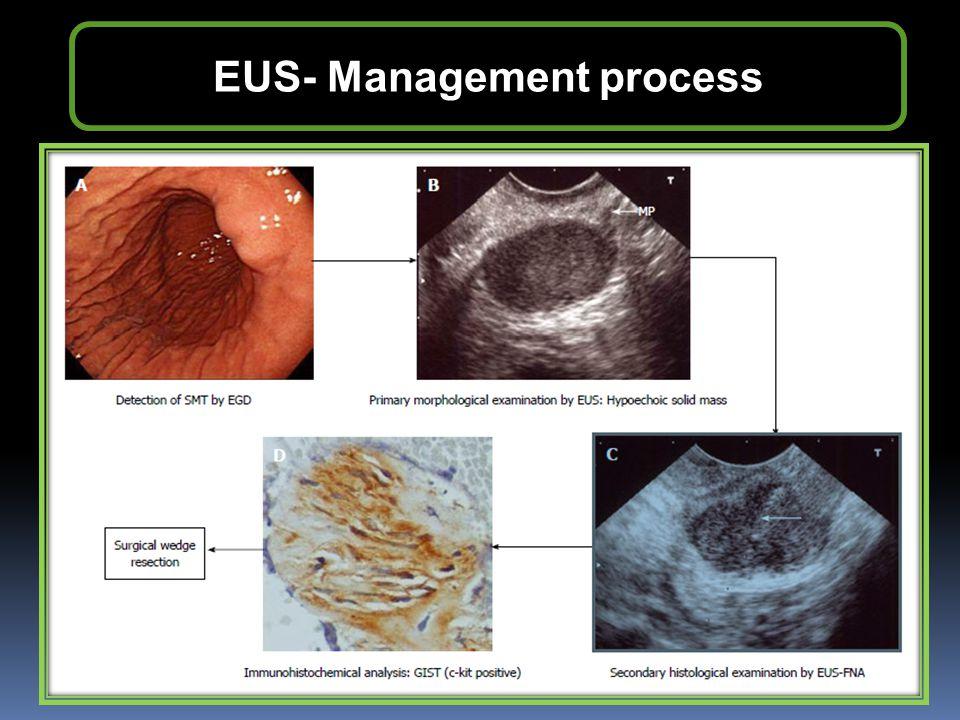 EUS- Management process