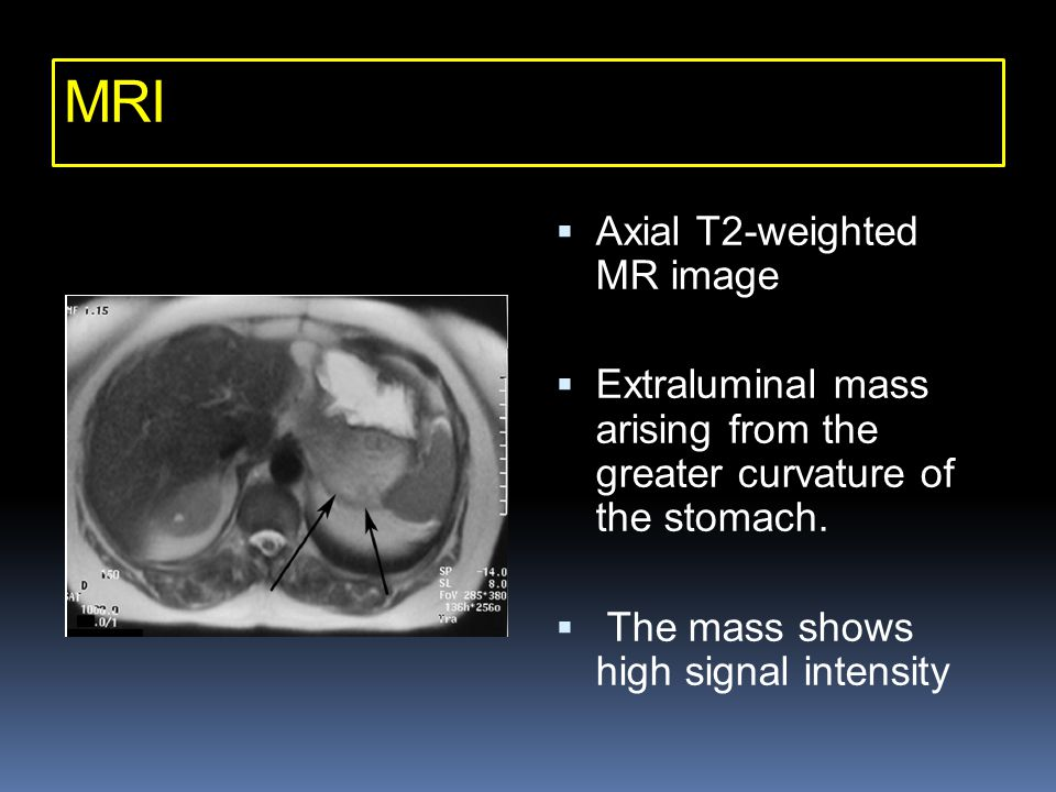 MRI Axial T2-weighted MR image