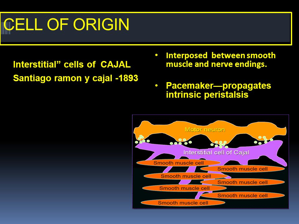 CELL OF ORIGIN Interposed between smooth muscle and nerve endings.