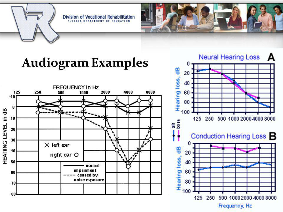 Audiogram Examples Valerie to discuss differences in the levels (severity) of hearing loss using audiogram examples.