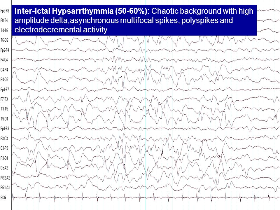 Inter-ictal Hypsarrthymmia (50-60%): Chaotic background with high amplitude delta,asynchronous multifocal spikes, polyspikes and electrodecremental activity